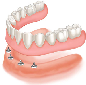 Implant based dentures