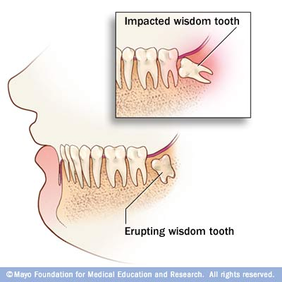 how to keep mouth clean after wisdom teeth