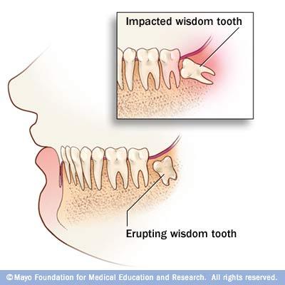 Wisdom Teeth First Dental Care